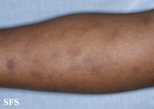 arm rash.jpg